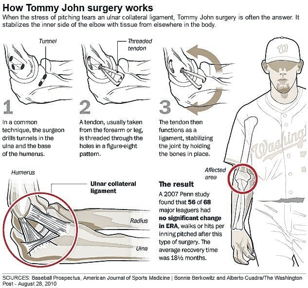 surgery of tommy john This guideline focuses on symptoms of and interventions for gastro-oesophageal reflux disease (gord) commonly observed events, such as infant regurgitation, are.
